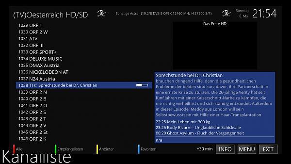 MetrixHD - selbsterstellte Skinpart`s-mini-tv-2.jpg